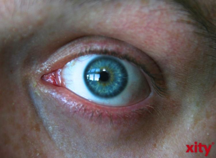 Beschwerden durch trockene Augen lassen sich in der Regel leicht lindern (Foto: xity)